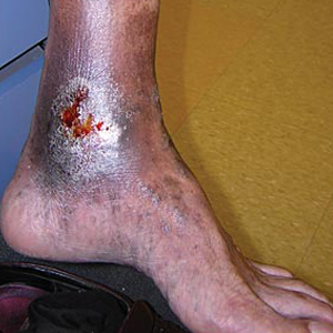 ayurved upchar kendravaricose ulcer ayurvedic treatmment